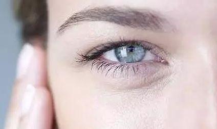 怎么去眼角纹